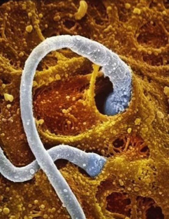 http://estaticos.tonterias.com/wp-content/uploads/2011/09/evolucion-feto-bebe-05.jpg